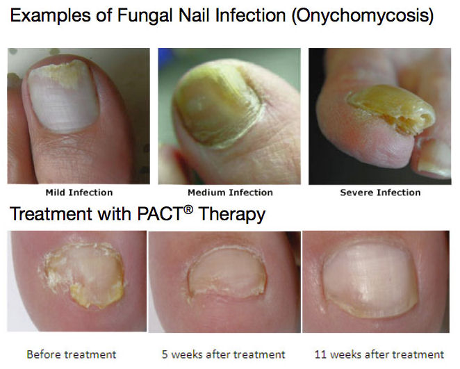 Toenail Fungus Treatment Treatment using a PACT Machine