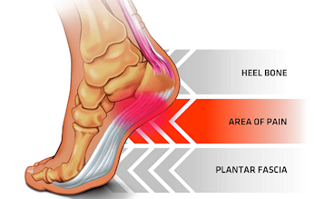 Suffering from Plantar Fasciitis?